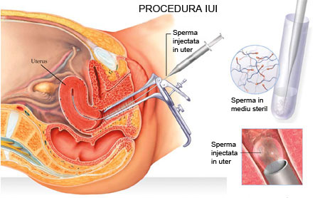 /Images/PROCEDURA-IUI.jpg