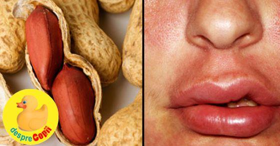 Alergia la alune si nuci