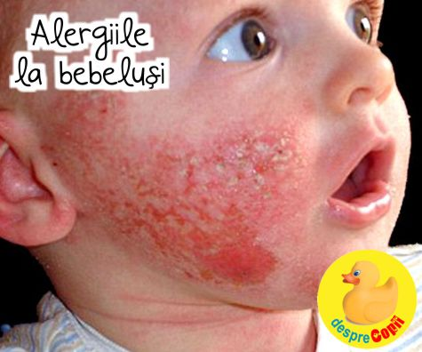 Alergiile la bebelusi: tot ce trebuie sa stii