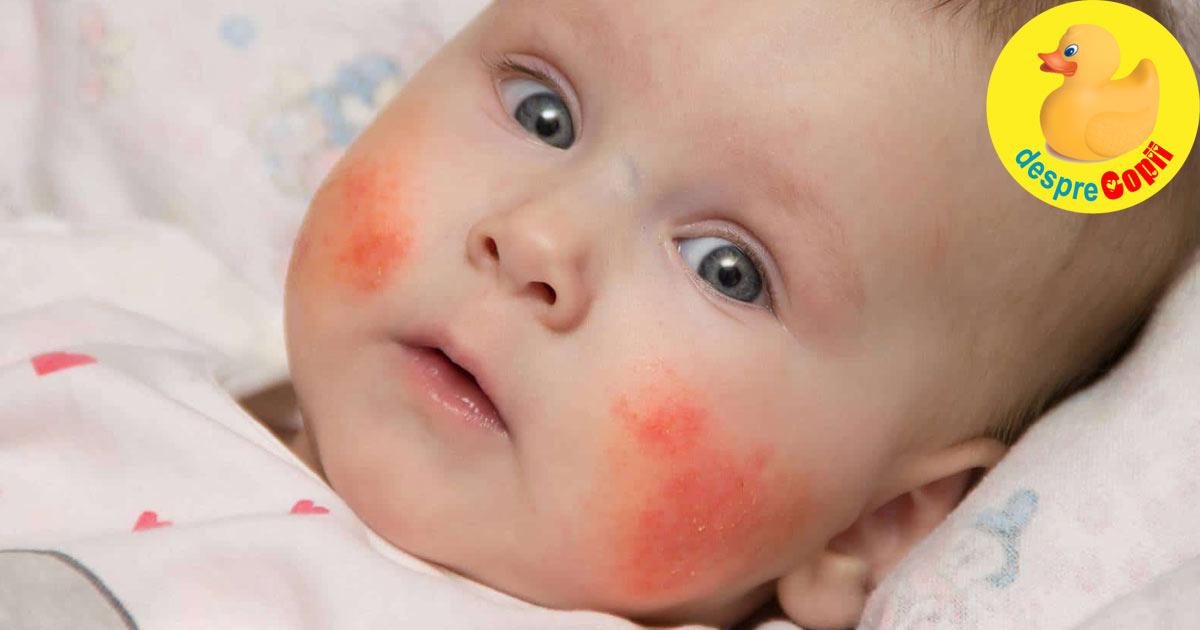 Alergiile alimentare la bebelusi - sfatul medicului pediatru