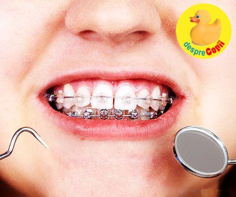 aparat-dentar-copilarie-1132016.jpg