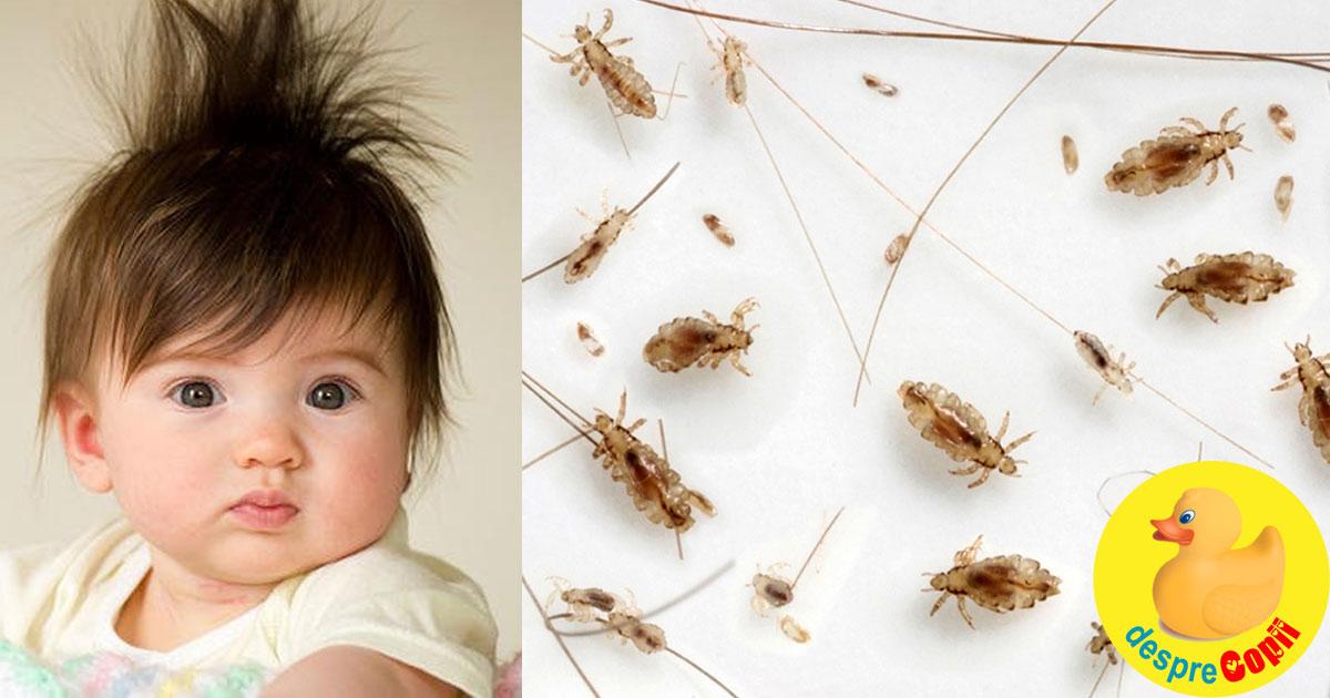 Cand bebelusul are paduchi: ce facem si cum procedam