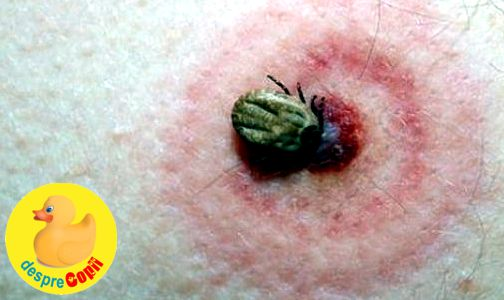 Boala Lyme (Borelioza)