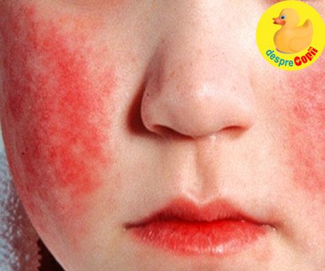 Boala obrajilor palmuiti - daca ai un copil la gradinita sau la scoala trebuie sa stii de ea