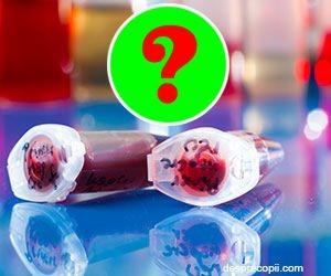 Celulele stem din nou sub lupa – ce spun medicii americani?