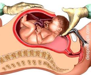Operatia cezariana si riscurile legate de placenta
