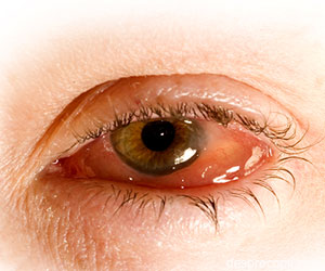 Alergie ochi umflati tratament naturist