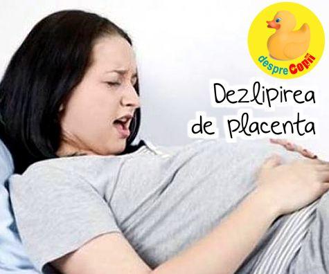 Dezlipirea de placenta: ce trebuie sa stii