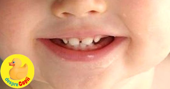 Ghid complet de ingrijire dentara din primul an de viata al copilului