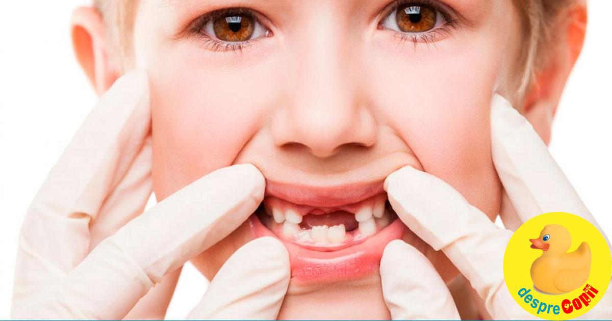 Ce se intampla cand copiii isi pierd prea devreme dintii de lapte? - sfatul medicului stomatolog pediatru