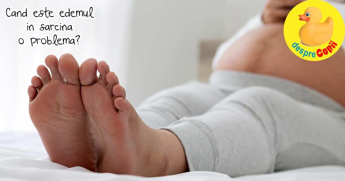 umflarea picioarelor la sfârșitul zilei