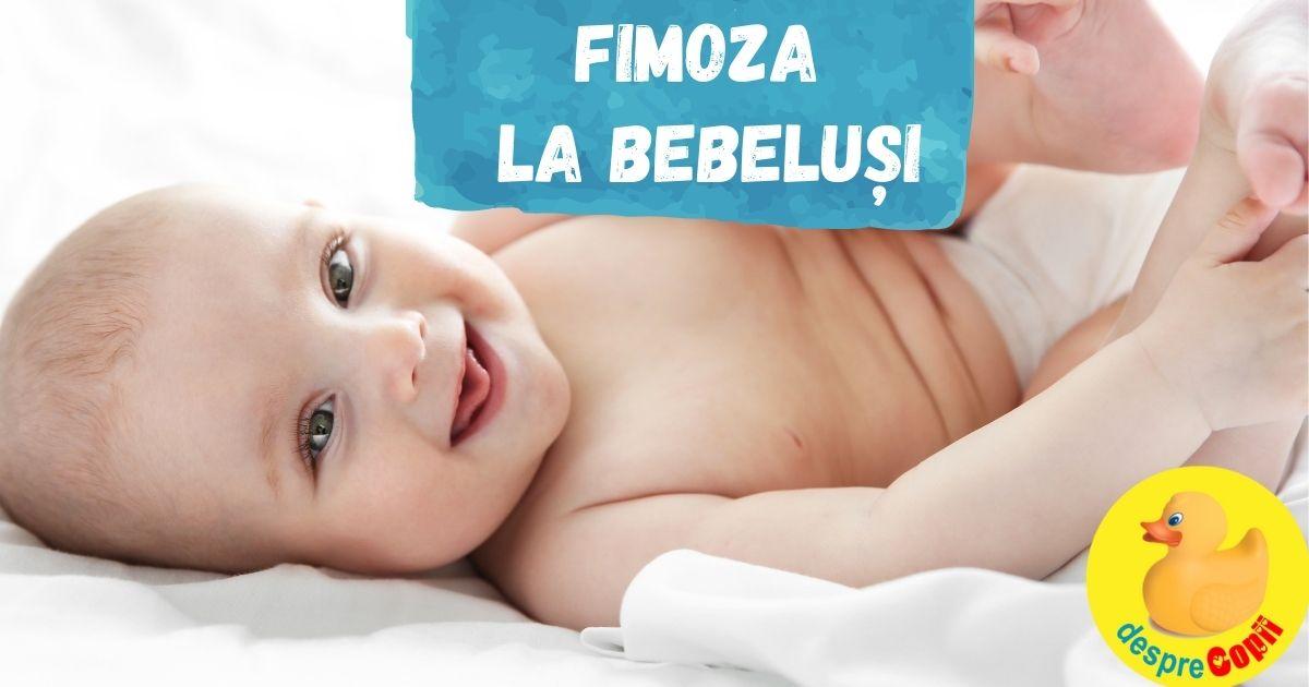 Fimoza la bebelusi: cauze, evolutie si tratament