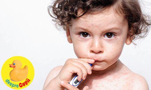 Hepatita B la copil: simptome, transmitere, prevenire si tratament