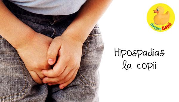 Hipospadias la copil