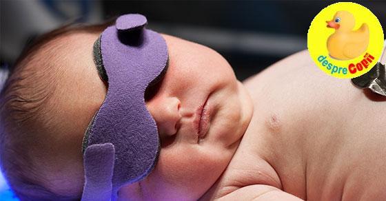 Icterul la nou nascuti: forme si tratament - sfatul medicului