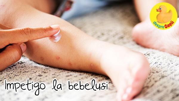 Impetigo la bebelusi: cauze si tratament - sfatul medicului