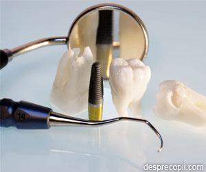 5 lucruri de stiut despre implanturile dentare