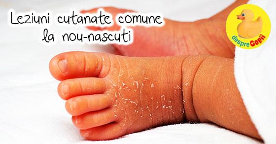 Leziuni cutanate comune la nou-nascuti: despre pielea bebelusilor - sfatul medicului