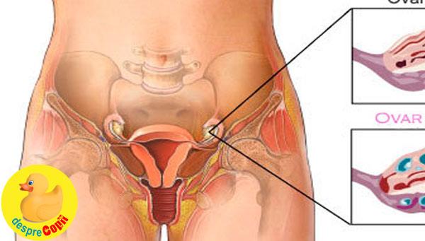Sindromul ovarului polichistic: simptome si tratament