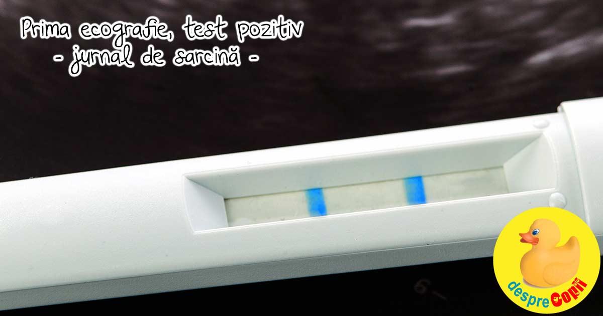 Prima vizita la medic dupa testul pozitiv de sarcina - jurnal de sarcina