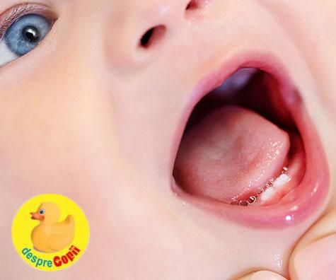 Aparitia dintilor de lapte: semne, dureri si ce putem face pentru a calma bebelusul