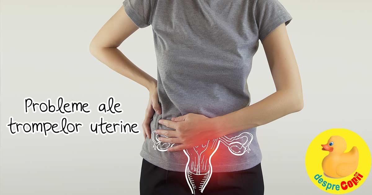 Probleme ale trompelor uterine - disfunctiile trompelor uterine