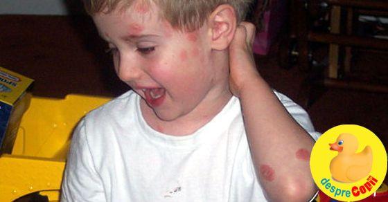 Psoriazis la copil: cauze si ingrijire