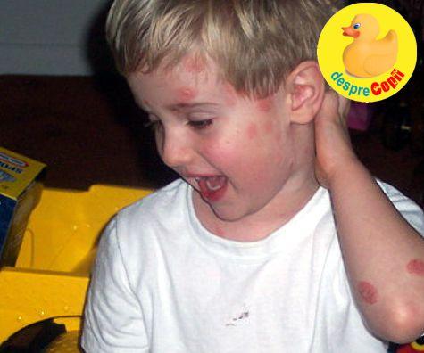 bioderma dermatita atopica definitie genul