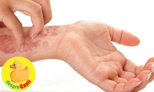 Tratamente naturiste pentru psoriazis