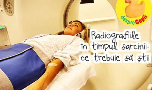 Sunt permise radiografiile in timpul sarcinii?