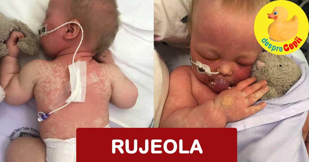 Lupta infricosatoare a bebelusei mele cu rujeola - povestea unei mamici