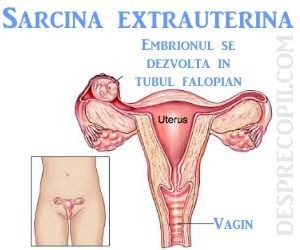 sarcina-extrauterina-cauze.jpg