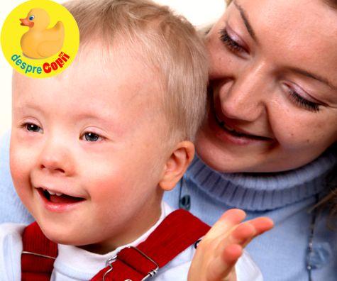 Sindromul Down si transmiterea sa in genele familiei