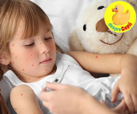 11 intrebari si raspunsuri despre varicela