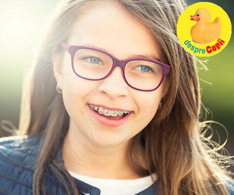 Tipuri de aparate dentare fixe, pentru zambetul frumos si sanatos al copilului tau