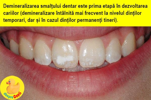 demineralizare-dinti-10112019-a.jpg