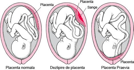 /Images/foto placenta dezlipita.jpg