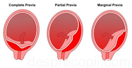 placenta previa research paper Learn about placenta previa, find a doctor, complications, outcomes, recovery and follow-up care for placenta previa.