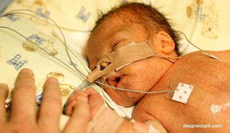 /Images/prematur-sarcina-bebe.jpg