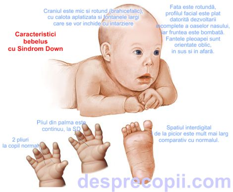 bebelus cu sindrom down