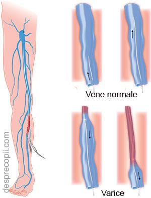 picioare umflate in sarcina remedii