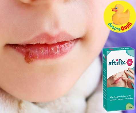Cele mai frecvente afectiuni orale la copil: aftele si herpesul. Cum putem ajuta copilul?