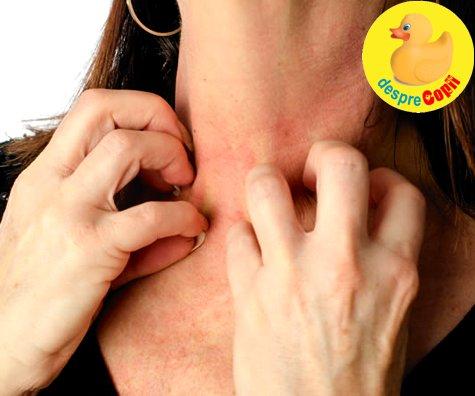 Alergiile: ce anume le cauzeaza si de ce devin tot mai dese