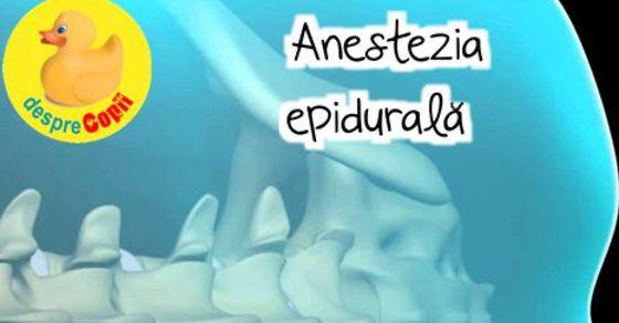 Anestezia epidurala: tot ce trebuie sa stii in avans