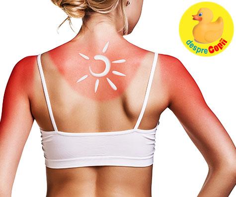 Arsurile solare: 19 tratamente si remedii la indemana cand pielea e arsa de soare