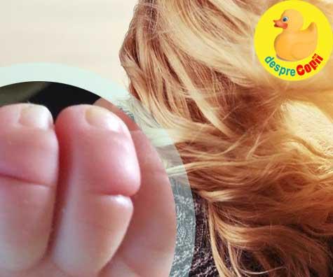 Un singur fir de par poate fi extrem periculos pentru bebelusi - fotografia care a devenit virala