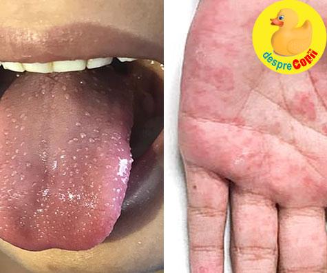 Sunt aceste simptome de inflamatie ale copiilor legate de infectarea cu Covid-19?
