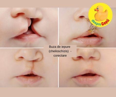 Buza de iepure (cheiloschizis) la bebelusi: cauze si depistare - povestea unei mamici ce a aflat diagnosticul in saptamana 20 de sarcina ru