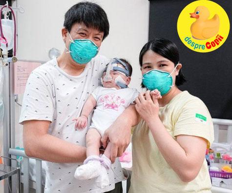 Cel mai mic bebelus din lume la nastere, a fost externat dupa 13 luni de spitalizare 💗