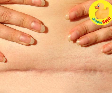 Cezariana este o rana pe uter. Iata cum te vei recupera acasa si 6 lucruri de care trebuie sa ai grija - sfatul medicului ginecolog